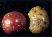 Βακτηριακή κηλίδωση